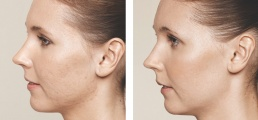 Skin Boosters by Helen Cleland